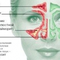 Як лікувати хронічний нежить?