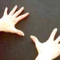 Проблема парестезії (втрати чутливості) верхніх кінцівок