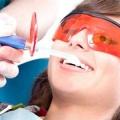 Ультразвукова чистка зубів, ціна