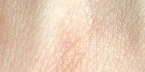 Наша шкіра є водонепроникною через жиру