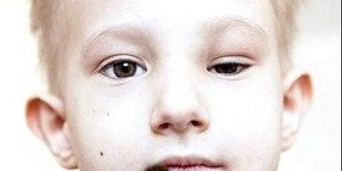 Нейробластома - симптоми та ознаки, лікування